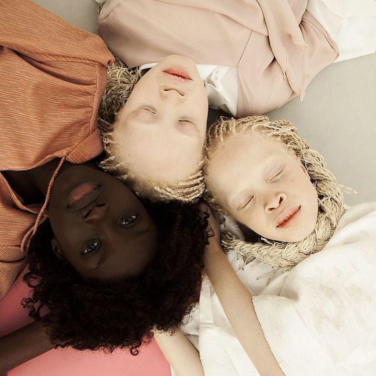 albinoski-20-7