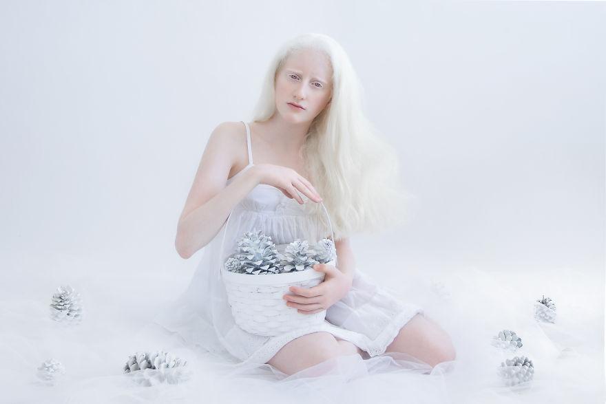 portrety-lyudey-albinosov_10
