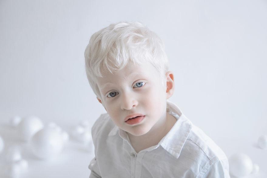 portrety-lyudey-albinosov_12