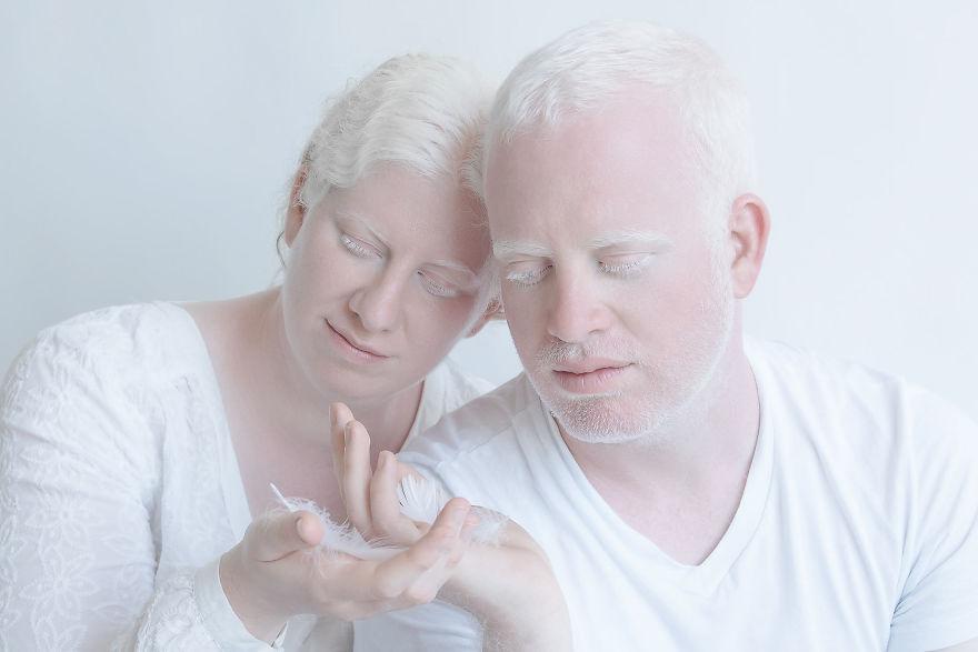 portrety-lyudey-albinosov_13