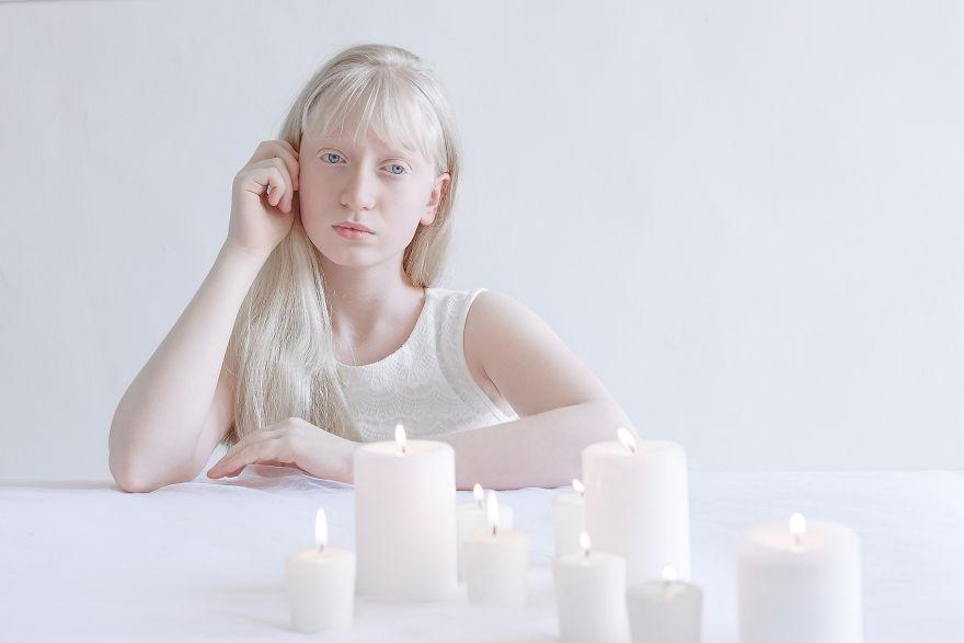 portrety-lyudey-albinosov_5