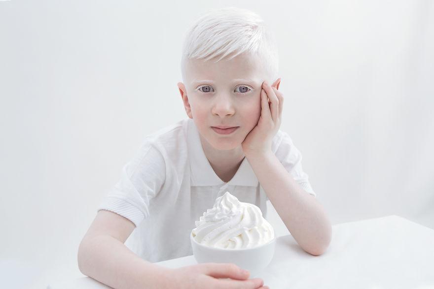 portrety-lyudey-albinosov_6