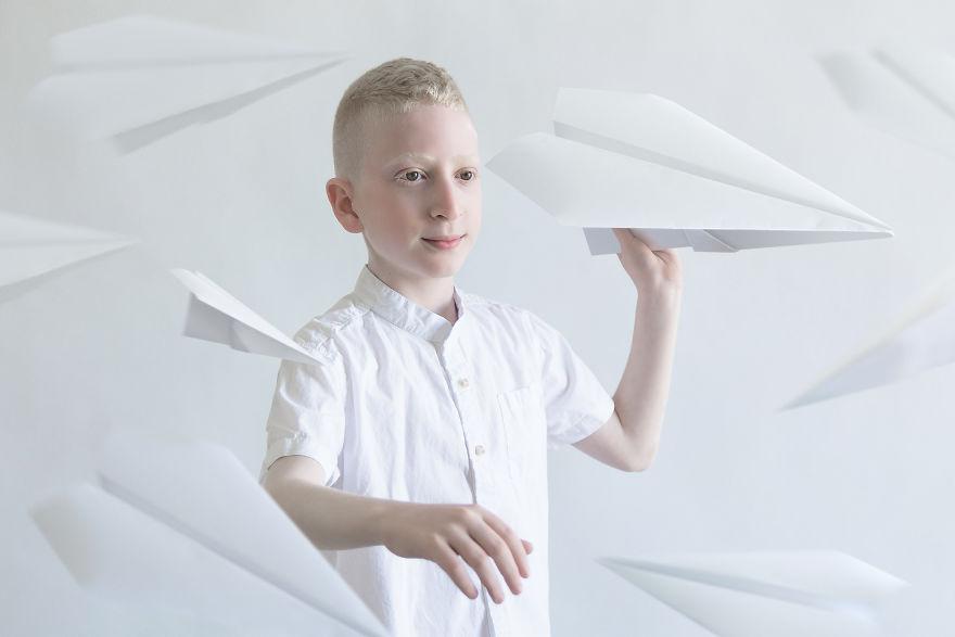 portrety-lyudey-albinosov_8