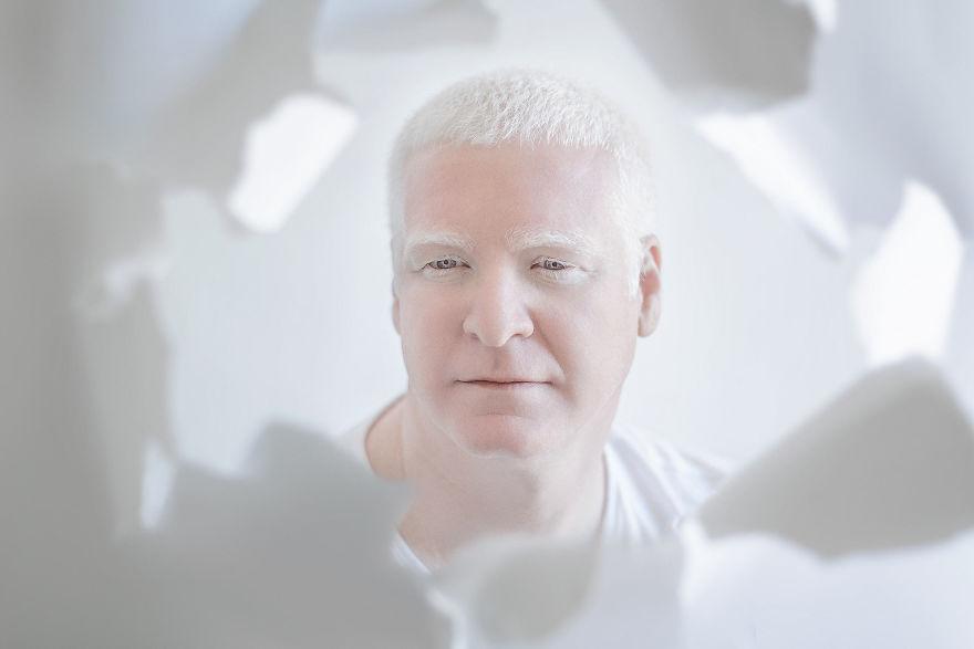 portrety-lyudey-albinosov_9