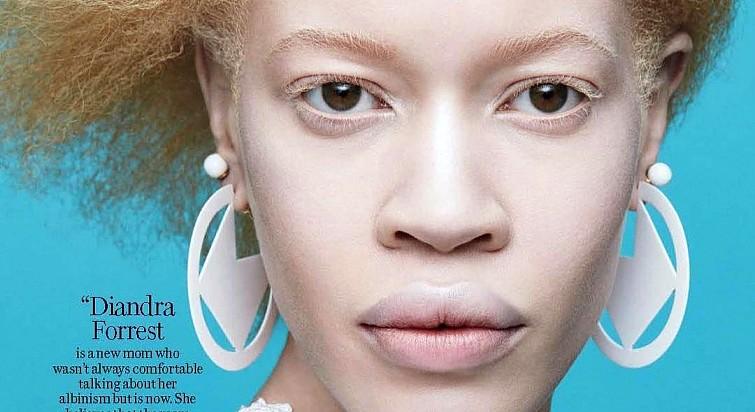 Диандра Форрест — афроамериканская модель-альбинос, сделавшая головокружительную модельную карьеру