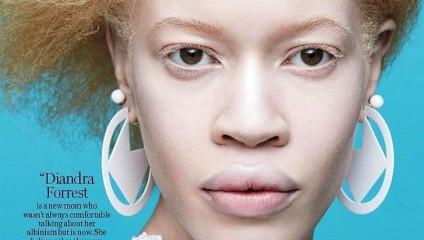 Диандра Форрест - афроамериканская модель-альбинос, сделавшая головокружительную модельную карьеру