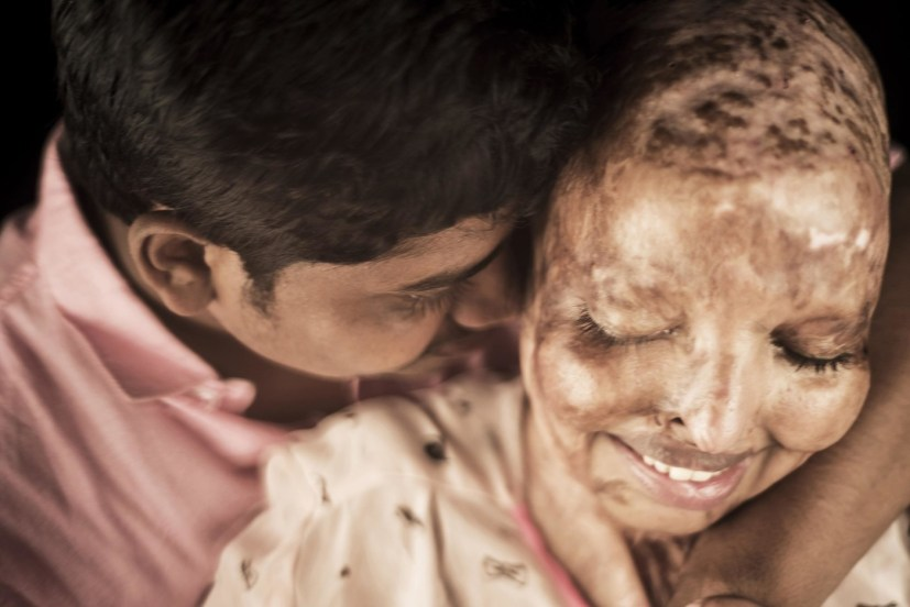 PIC BY NIRAJ GERA/ CATERS NEWS: (PICTURED: Rani, the brave acid attack survivor bear her scars in an empoweing photoshoot with the love of her life Saroj in Noida, India.Pic taken on 22/10/2017) - An Indian woman who suffered horrific burns to her face and lost vision in both the eyes in an acid attack by scorned admirer has found the love of her life in the hospital bed. Pramodini Roul, was just 15 years old when a bike-borne paramilitary soldier threw acid on her face, melting it away completely and blinding both her eyes because she had rejected his marriage proposal. The 25-year-old survivor, who is lovingly called Rani or queen by her family, was a 10th grade student then and was returning from taking an exam with her cousin when the 28-year-old man doused her with the corrosive element. Rani spent four months in ICU immediately after the incident and later was bedridden for four years at her house in Odisha in eastern India while her widowed mother took care of her alone, bandaging her pus-filled wounds. SEE CATERS COPY.