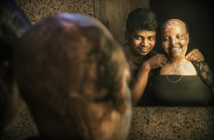 PIC BY NIRAJ GERA/ CATERS NEWS: (PICTURED: Rani, the brave acid attack survivor bear her scars in an empoweing photoshoot with the love of her life Saroj in Noida, India. Pic taken on 22/10/2017) - An Indian woman who suffered horrific burns to her face and lost vision in both the eyes in an acid attack by scorned admirer has found the love of her life in the hospital bed. Pramodini Roul, was just 15 years old when a bike-borne paramilitary soldier threw acid on her face, melting it away completely and blinding both her eyes because she had rejected his marriage proposal. The 25-year-old survivor, who is lovingly called Rani or queen by her family, was a 10th grade student then and was returning from taking an exam with her cousin when the 28-year-old man doused her with the corrosive element. Rani spent four months in ICU immediately after the incident and later was bedridden for four years at her house in Odisha in eastern India while her widowed mother took care of her alone, bandaging her pus-filled wounds. SEE CATERS COPY.