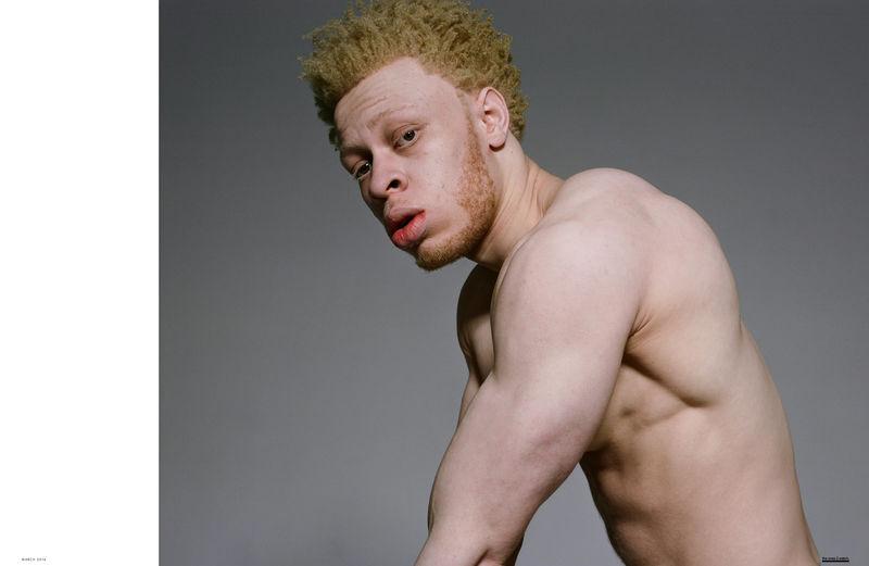 albino-model