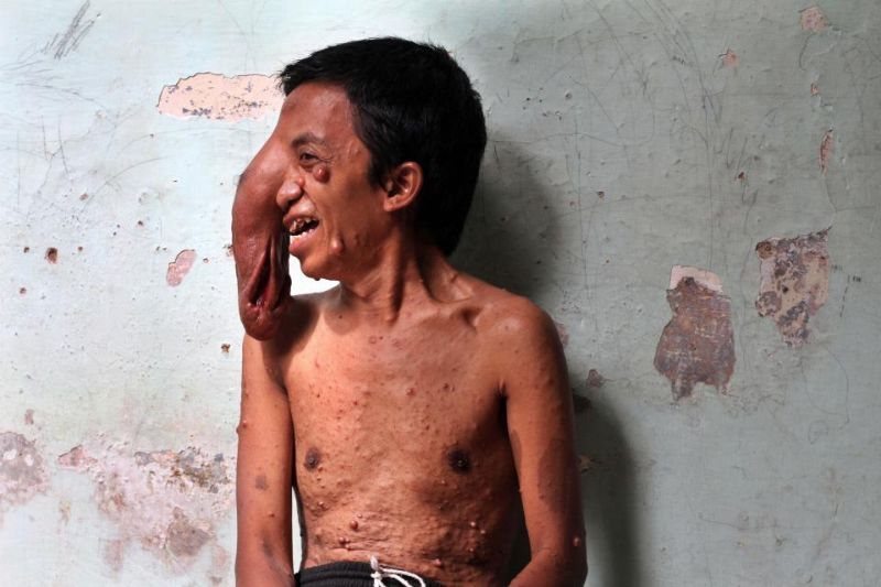 indoneziec-stradaet-ot-postoyanno-rastushhej-opuxoli-na-meste-glaza-1