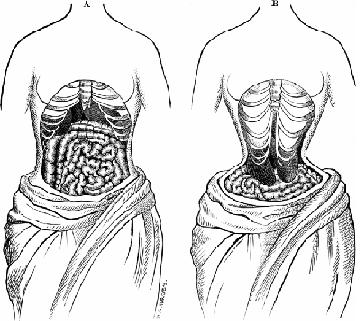 Организм здоровой женщины и женщины, носящей корсет
