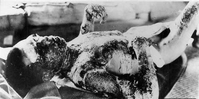 HIROSHIMA ATOMIC  BOMB VICTIM