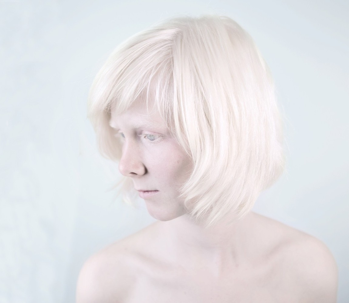 Что вы знаете об альбиносах?