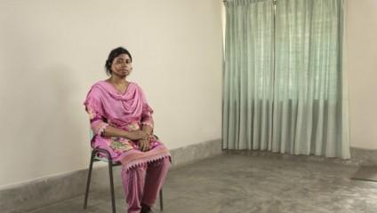 Кислотные атаки в Бангладеш: фотопроект «Survivors»