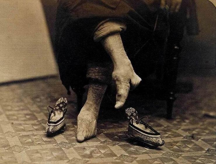 Страшная красота: «ножки-лотосы» китайских женщин
