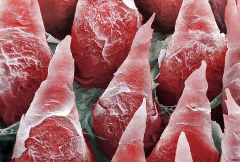 Человек под микроскопом: серия снимков нашего тела