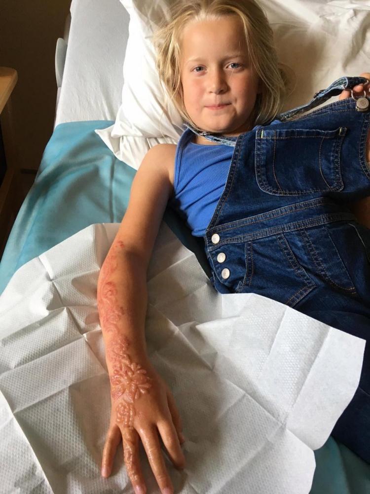7_летняя британка получила химический ожог от временной татуировки хной (4)