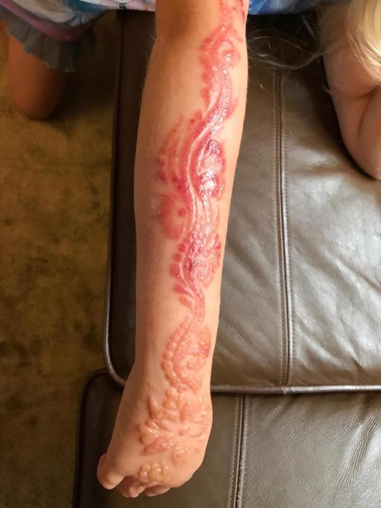 7_летняя британка получила химический ожог от временной татуировки хной (6)