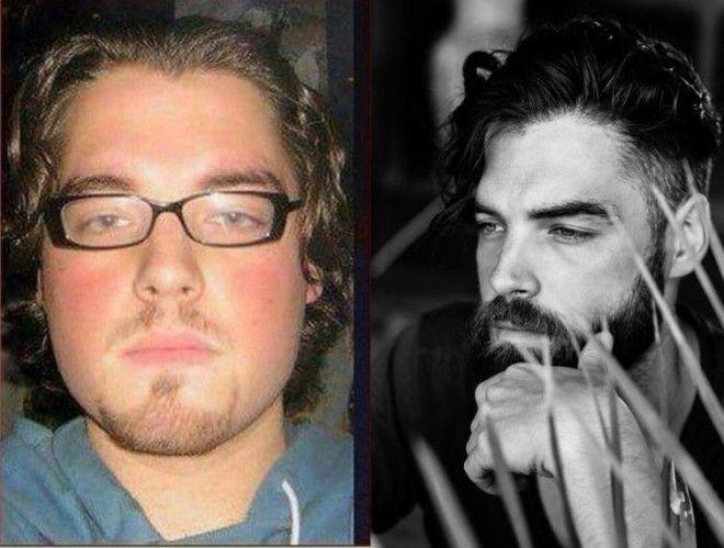 Люди выкладывают снимки до и после — здесь все — от избавления от лишних килограммов до исправления прикуса