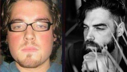 Люди выкладывают снимки до и после - здесь все - от избавления от лишних килограммов до исправления прикуса
