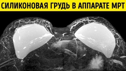 Снимки, которые могли видеть только рентгенологи