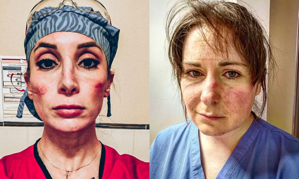 Душераздирающие фотографии врачей, которые просто перегружены работой